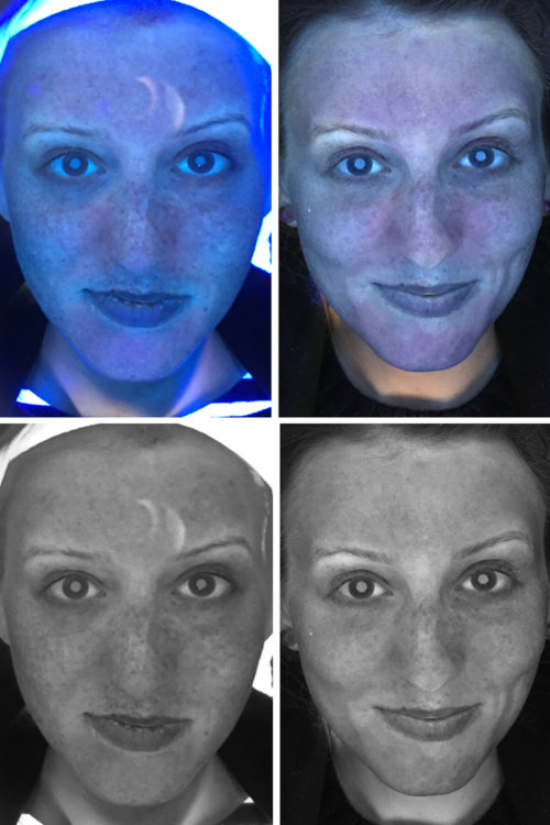 fraxel before and after sun spots laser treatment